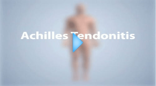 achilles tendonitis video