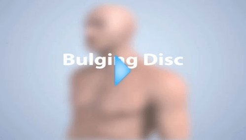 bulging disc video