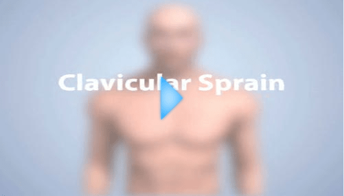 clavicular sprain video