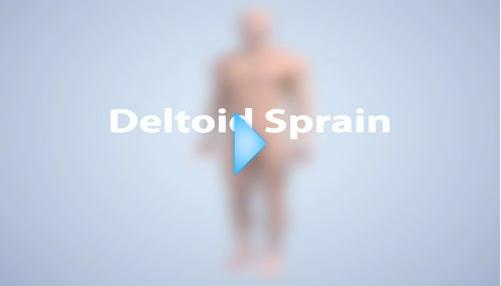 deltoid sprain video