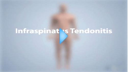 infraspinatus tendonitis video