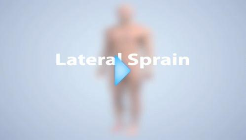 lateral sprain video