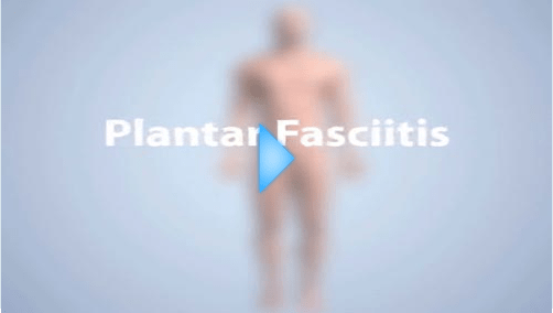 plantar fasciitis video