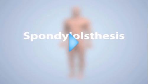 spondylolsthesis video